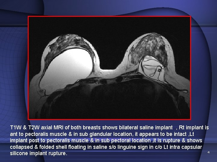 T 1 W & T 2 W axial MRI of both breasts shows bilateral