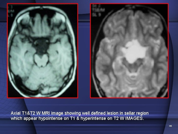 Axial T 1&T 2 W MRI image showing well defined lesion in sellar region