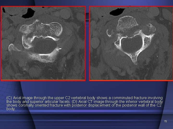 (C) Axial image through the upper C 2 vertebral body shows a comminuted fracture