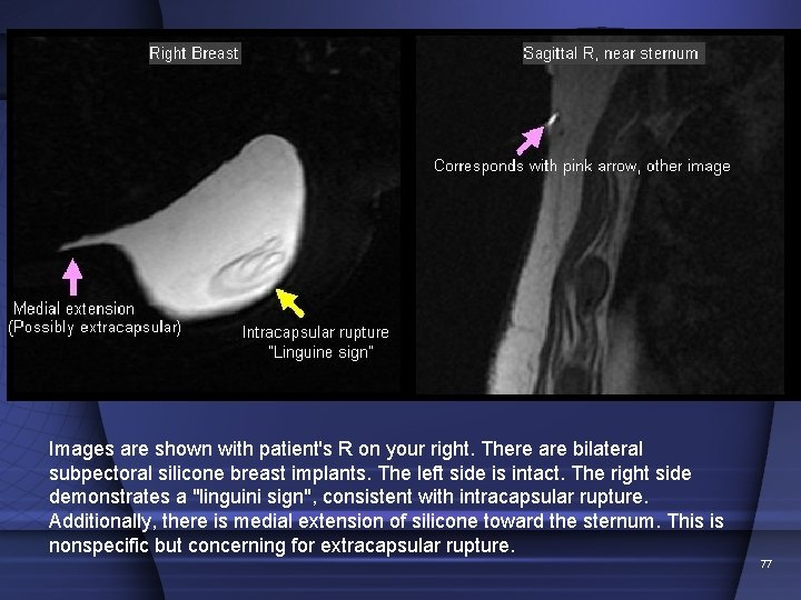 Images are shown with patient's R on your right. There are bilateral subpectoral silicone