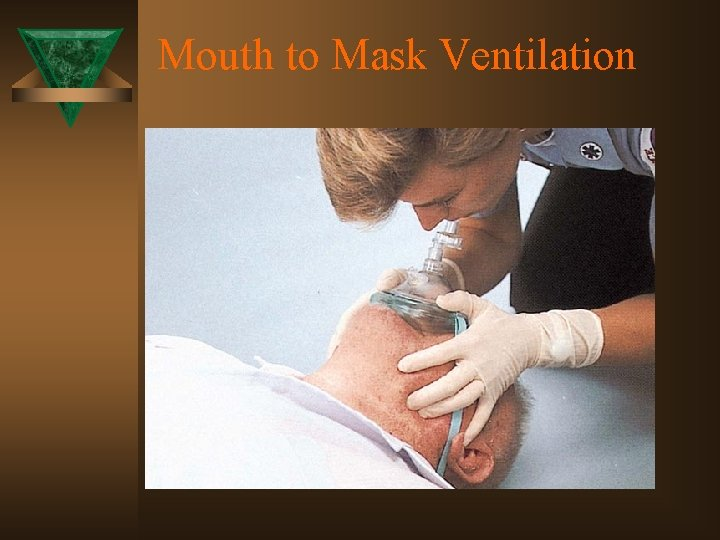 Mouth to Mask Ventilation