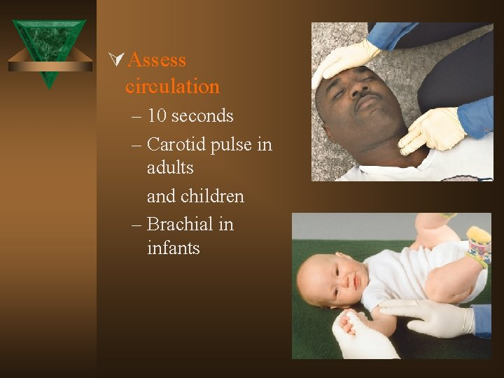 ÚAssess circulation – 10 seconds – Carotid pulse in adults and children – Brachial