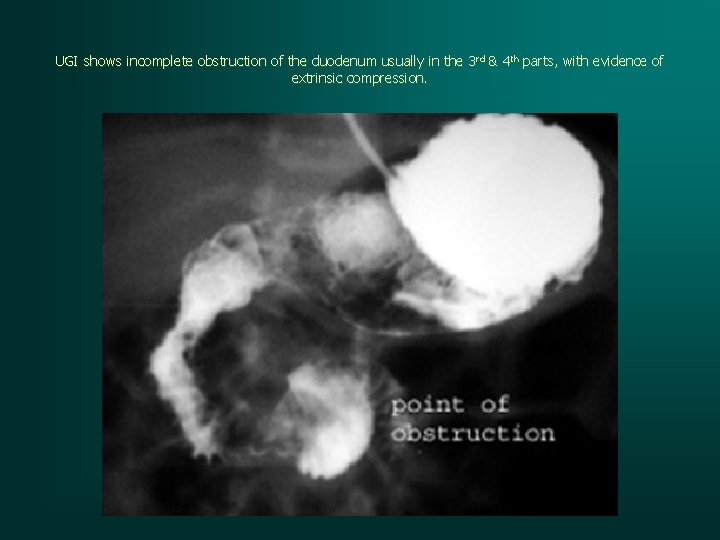 UGI shows incomplete obstruction of the duodenum usually in the 3 rd & 4
