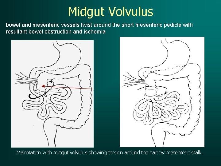 Midgut Volvulus bowel and mesenteric vessels twist around the short mesenteric pedicle with resultant