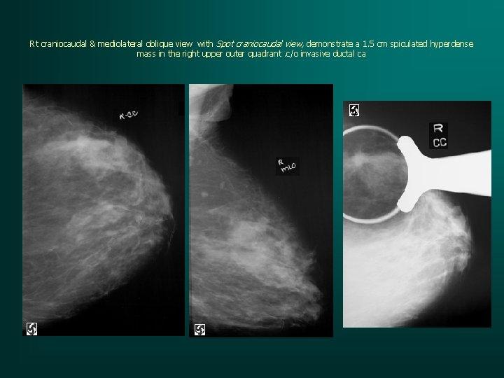 Rt craniocaudal & mediolateral oblique view with Spot craniocaudal view, demonstrate a 1. 5