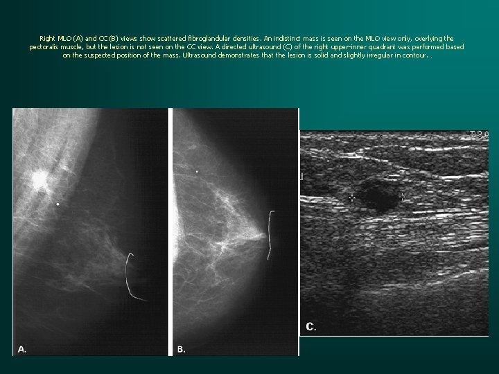 Right MLO (A) and CC (B) views show scattered fibroglandular densities. An indistinct mass
