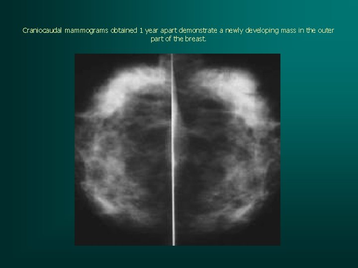 Craniocaudal mammograms obtained 1 year apart demonstrate a newly developing mass in the outer