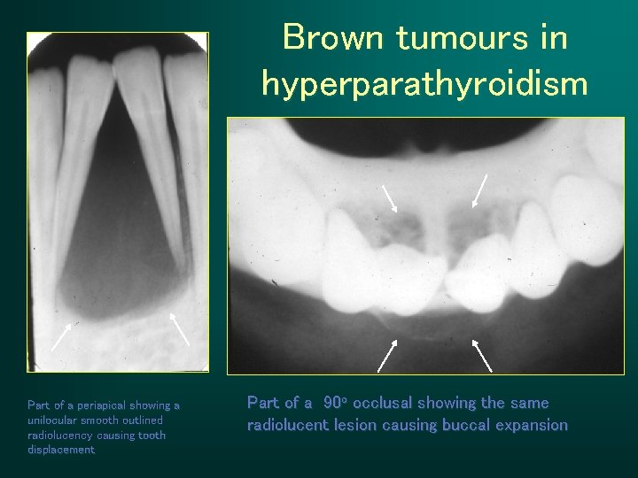Brown tumours in hyperparathyroidism Part of a periapical showing a unilocular smooth outlined radiolucency