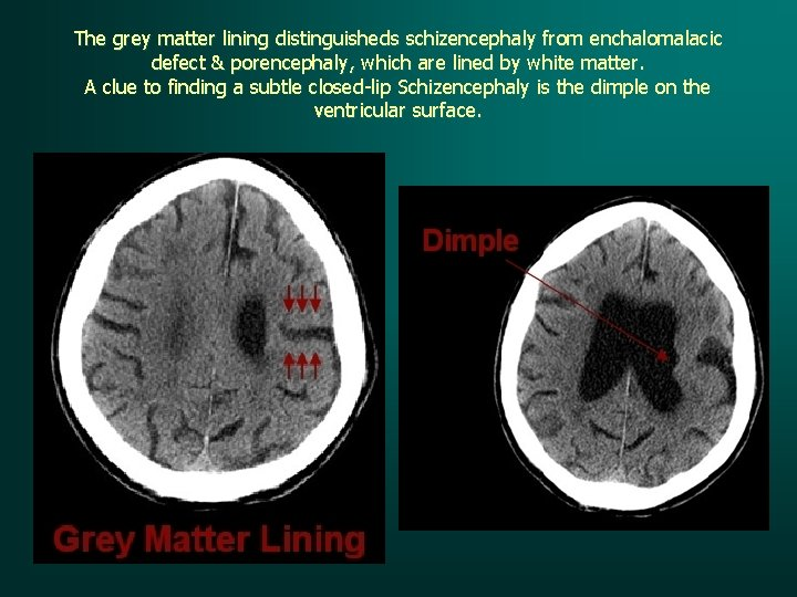 The grey matter lining distinguisheds schizencephaly from enchalomalacic defect & porencephaly, which are lined