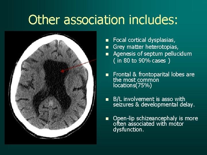 Other association includes: n n n Focal cortical dysplasias, Grey matter heterotopias, Agenesis of
