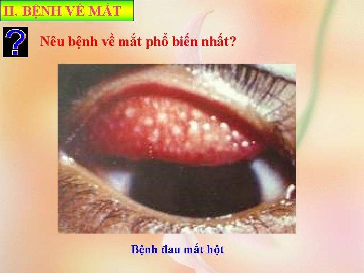 II. BỆNH VỀ MẮT Nêu bệnh về mắt phổ biến nhất? Bệnh đau mắt