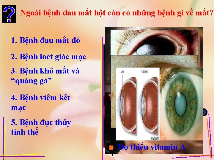 Ngoài bệnh đau mắt hột còn có những bệnh gì về mắt? 1. Bệnh