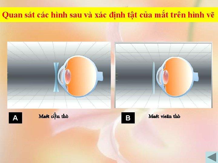 Quan sát các hình sau và xác định tật của mắt trên hình vẽ