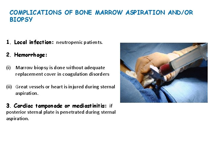 32+ A bone marrow biopsy is performed to test for osteoporosis ideas