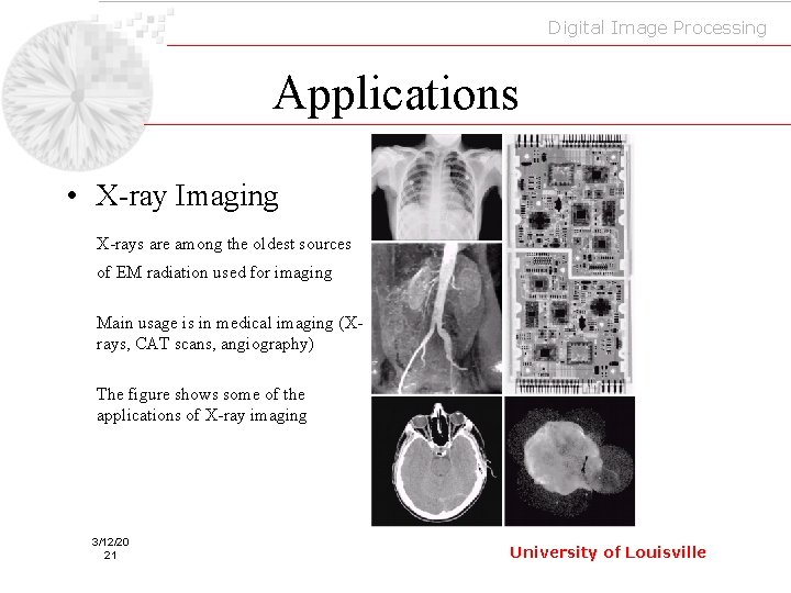 Digital Image Processing Applications • X-ray Imaging X-rays are among the oldest sources of