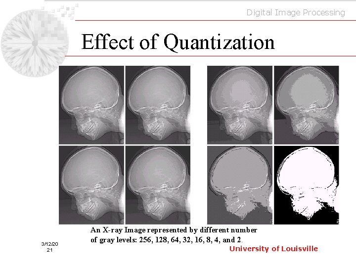 Digital Image Processing Effect of Quantization 3/12/20 21 An X-ray Image represented by different