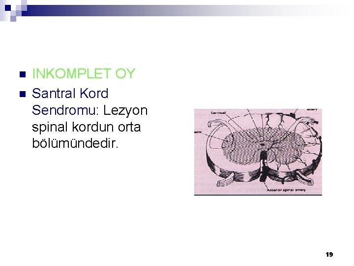 n n INKOMPLET OY Santral Kord Sendromu: Lezyon spinal kordun orta bölümündedir. 19