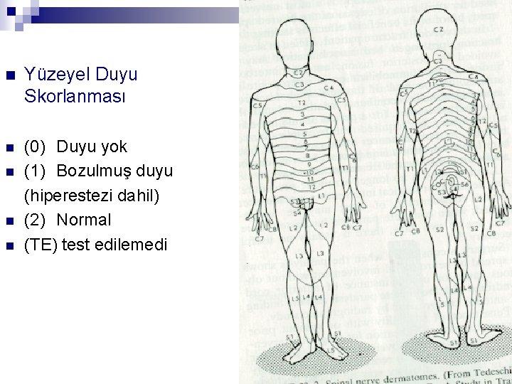 n Yüzeyel Duyu Skorlanması n (0) Duyu yok (1) Bozulmuş duyu (hiperestezi dahil) (2)