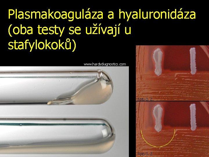 Plasmakoaguláza a hyaluronidáza (oba testy se užívají u stafylokoků) www. hardydiagnostics. com Foto O.