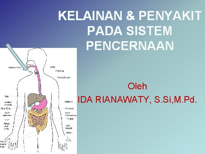 KELAINAN & PENYAKIT PADA SISTEM PENCERNAAN Oleh IDA RIANAWATY, S. Si, M. Pd.