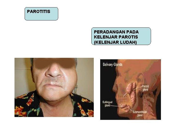 PAROTITIS PERADANGAN PADA KELENJAR PAROTIS (KELENJAR LUDAH)