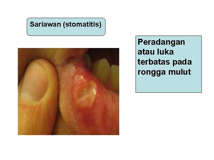 Sariawan (stomatitis) Peradangan atau luka terbatas pada rongga mulut
