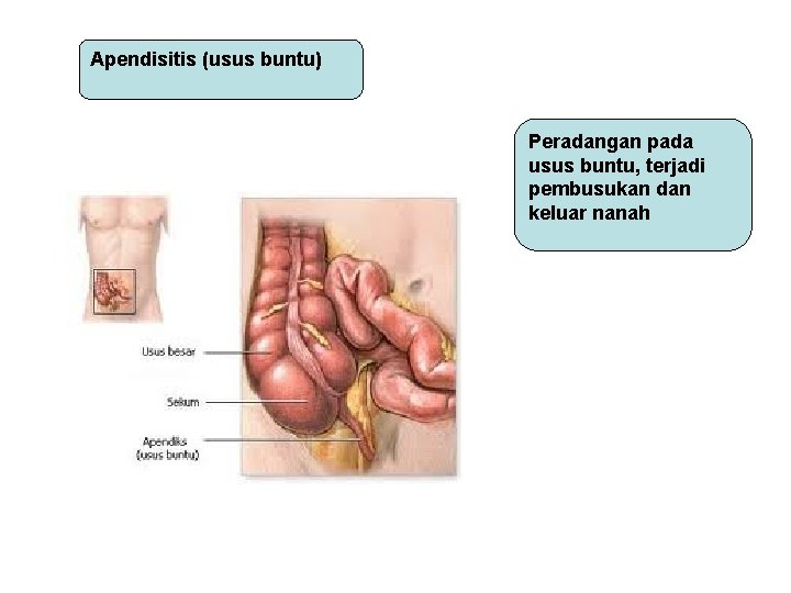 Apendisitis (usus buntu) Peradangan pada usus buntu, terjadi pembusukan dan keluar nanah
