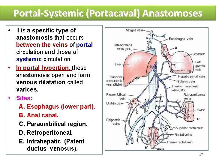 Portal-Systemic (Portacaval) Anastomoses • It is a specific type of anastomosis that occurs between