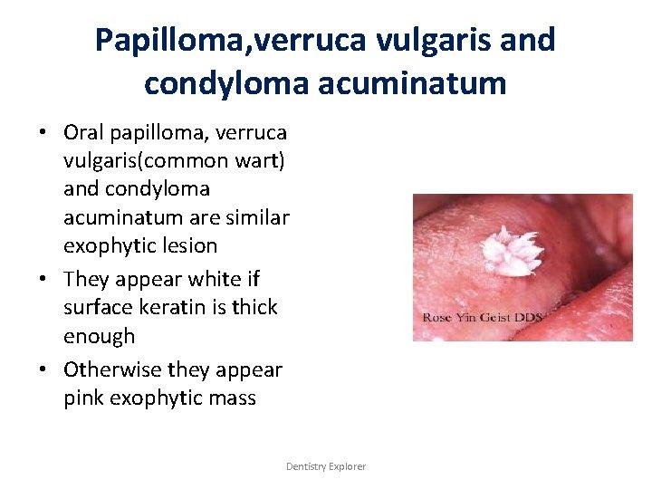 Papilloma, verruca vulgaris and condyloma acuminatum • Oral papilloma, verruca vulgaris(common wart) and condyloma
