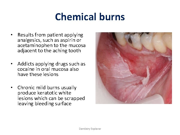 Chemical burns • Results from patient applying analgesics, such as aspirin or acetaminophen to