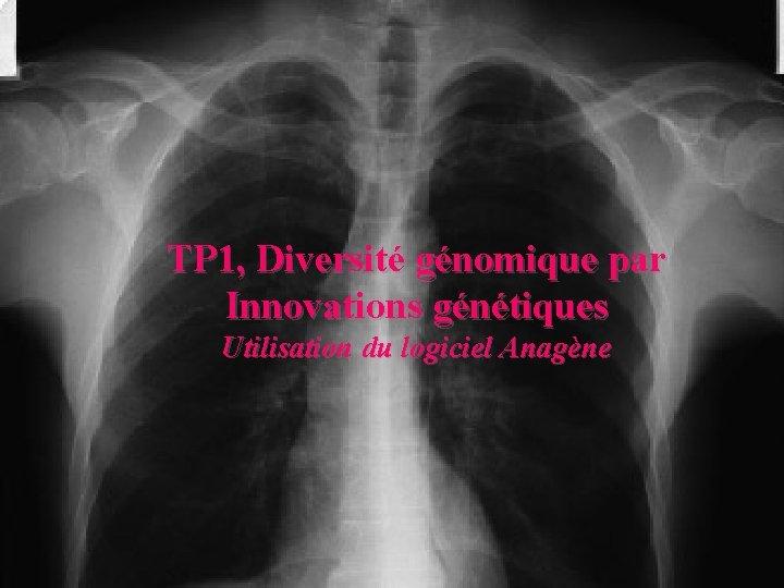 TP 1, Diversité génomique par Innovations génétiques Utilisation du logiciel Anagène