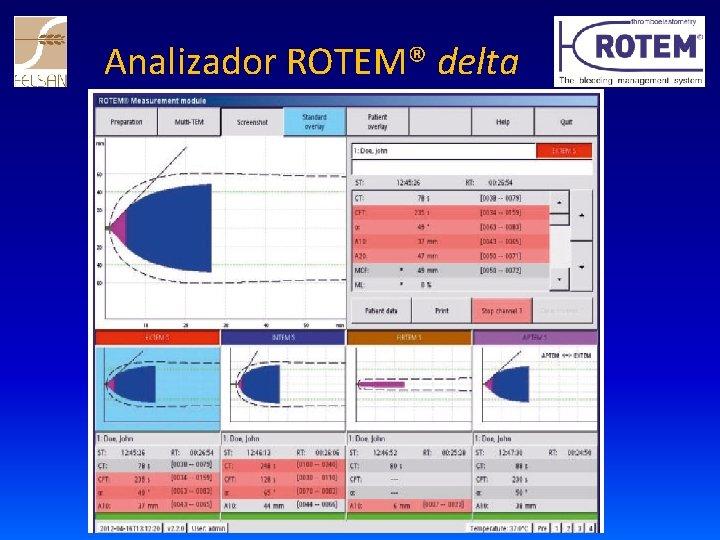 Analizador ROTEM® delta