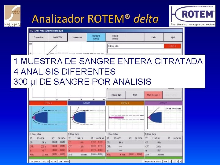 Analizador ROTEM® delta 1 MUESTRA DE SANGRE ENTERA CITRATADA 4 ANALISIS DIFERENTES 300 µl
