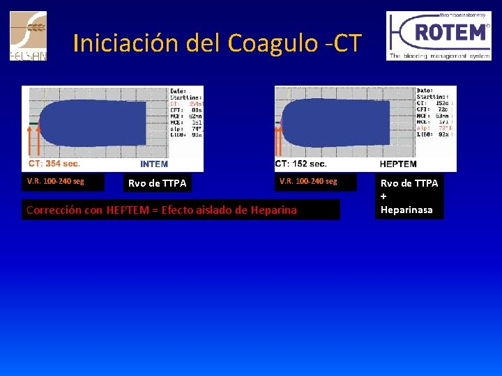 Iniciación del Coagulo -CT V. R. 100 -240 seg Rvo de TTPA V. R.