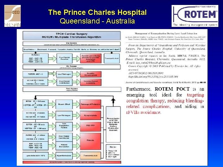 The Prince Charles Hospital Queensland - Australia