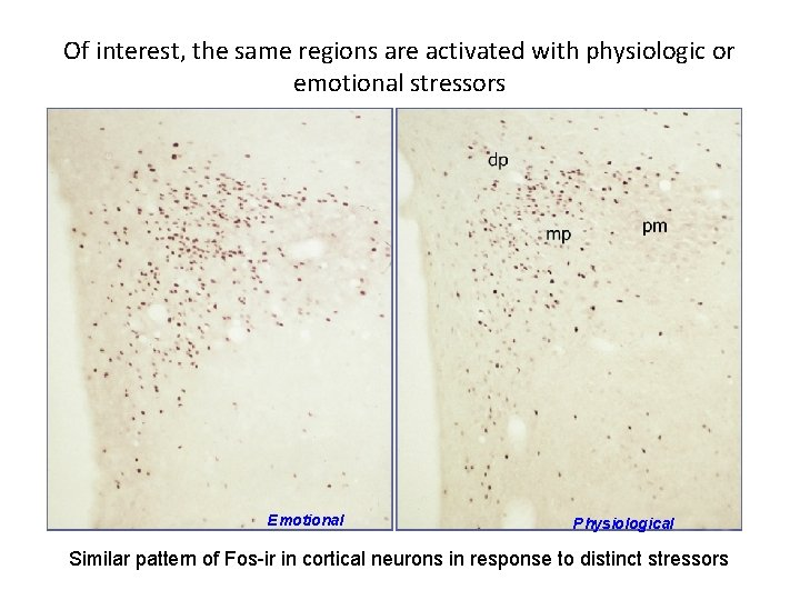 Of interest, the same regions are activated with physiologic or emotional stressors Emotional Physiological