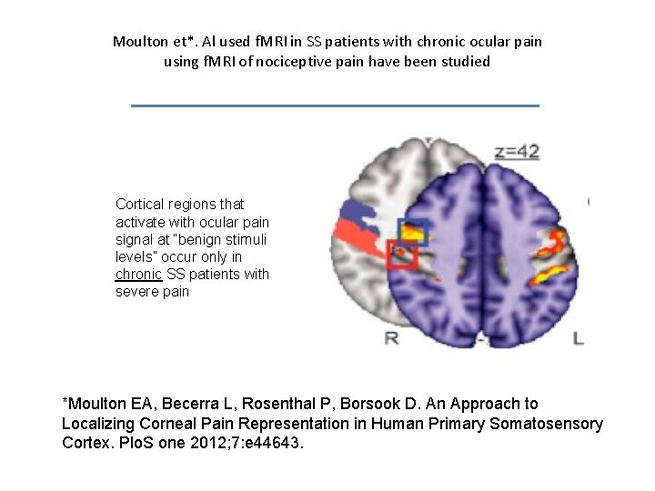 Moulton et*. Al used f. MRI in SS patients with chronic ocular pain using