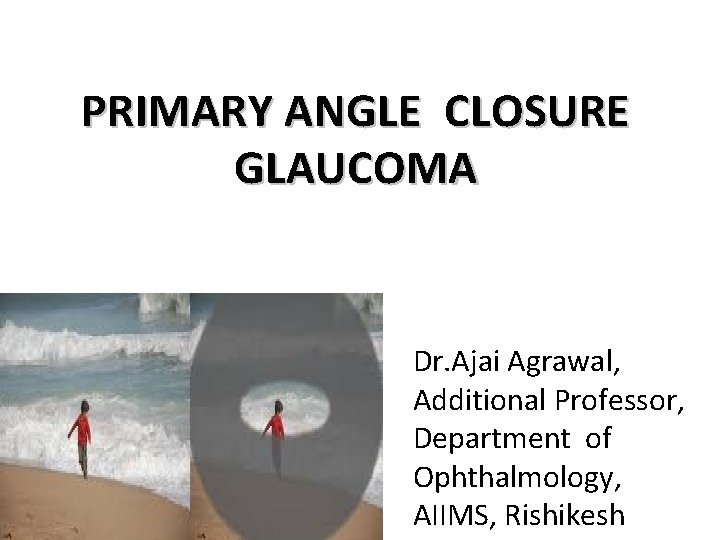 PRIMARY ANGLE CLOSURE GLAUCOMA Dr. Ajai Agrawal, Additional Professor, Department of Ophthalmology, AIIMS, Rishikesh