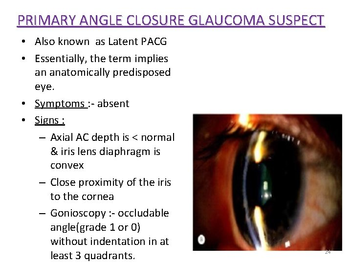 PRIMARY ANGLE CLOSURE GLAUCOMA SUSPECT • Also known as Latent PACG • Essentially, the
