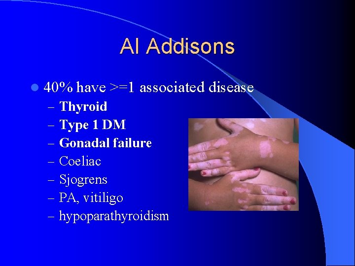 AI Addisons l 40% have >=1 associated – Thyroid – Type 1 DM –
