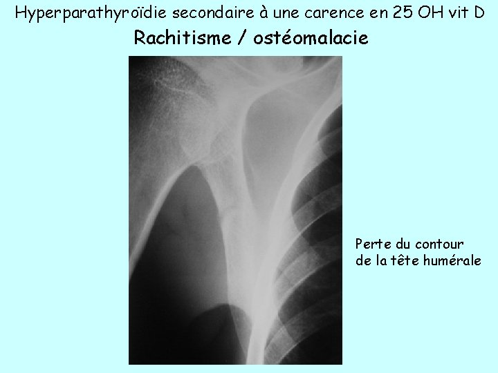 Hyperparathyroïdie secondaire à une carence en 25 OH vit D Rachitisme / ostéomalacie Perte