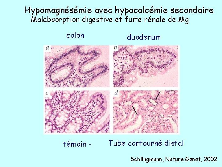 Hypomagnésémie avec hypocalcémie secondaire Malabsorption digestive et fuite rénale de Mg colon duodenum témoin