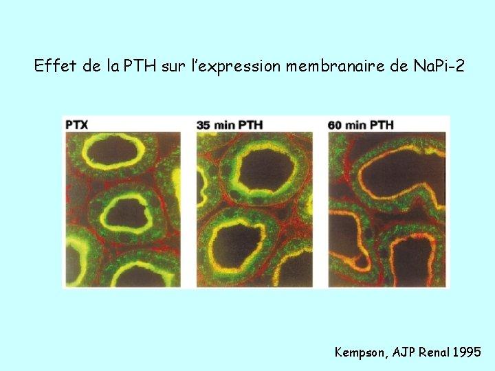 Effet de la PTH sur l'expression membranaire de Na. Pi-2 Kempson, AJP Renal 1995