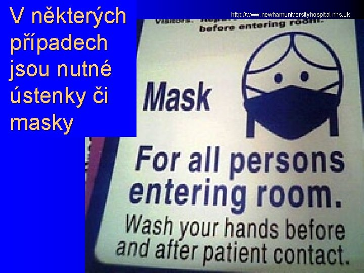 V některých případech jsou nutné ústenky či masky http: //www. newhamuniversityhospital. nhs. uk