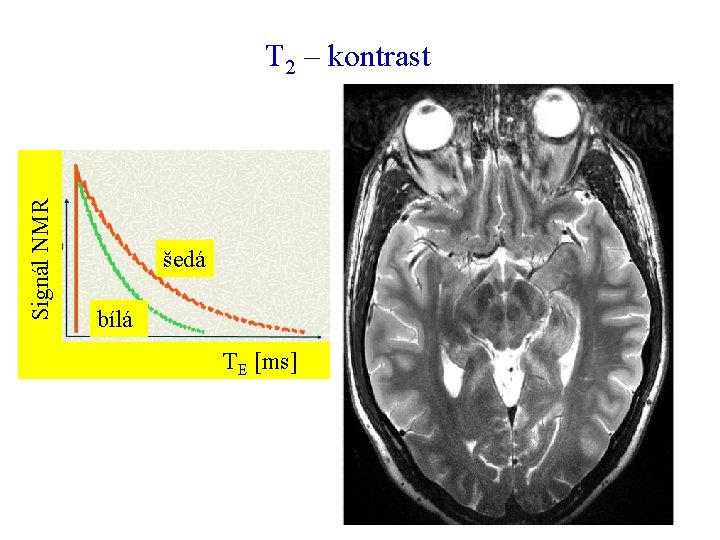 Signál NMR T 2 – kontrast šedá bílá TE [ms]