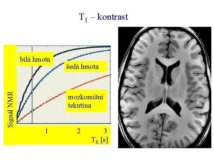 T 1 – kontrast Signál NMR bílá hmota šedá hmota mozkomíšní tekutina 1 2