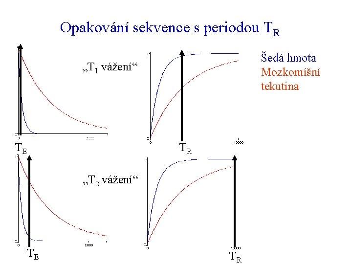 """Opakování sekvence s periodou TR Šedá hmota Mozkomíšní tekutina """"T 1 vážení"""" TE TR"""