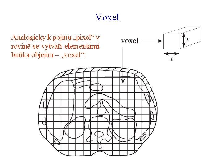 """Voxel Analogicky k pojmu """"pixel"""" v rovině se vytváří elementární buňka objemu – """"voxel""""."""