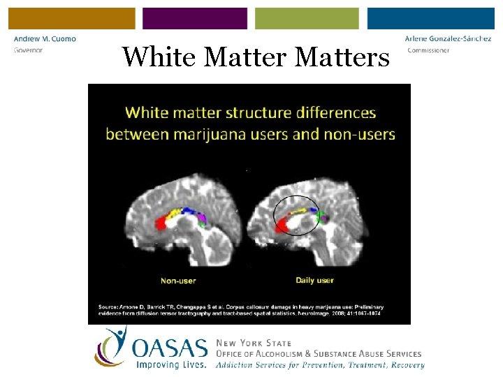 White Matters