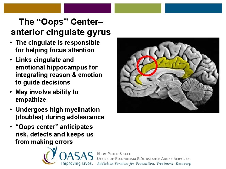 """The """"Oops"""" Center– anterior cingulate gyrus • The cingulate is responsible for helping focus"""